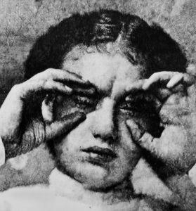 Eric Manigaud   Trachoma Pannus Keratitis – 1916   2015   Pencil, graphite powder on paper   150x125cm